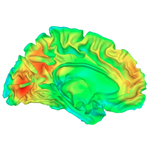 brain scan output